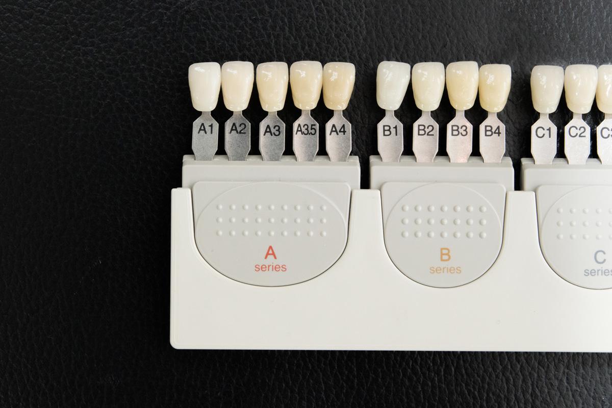 日本人の平均的な歯の色はA3.5。